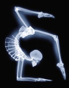 x-ray bend