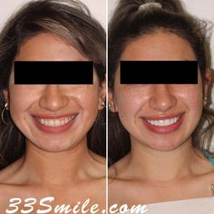 Happy Monday hope yall had a good weekend! This case was 8 Prepless veneers and we love the result! #drjamsmiles #33Smile . . All photos and video of patients are of our actual patients. All media is the of Cosmetic Dental Associates. Any use of media contained herein is prohibited without written consent. . . #satx #satxdentist #dentistry #goals #smile #teeth #instagoals #transformationtuesday #beforeandafter #whiteteeth #perfect #transformation #teethwhitening #veneers #Invisalign #porcelai Insta Goals, Dental Cosmetics, Smile Teeth, Dental Procedures, Have A Good Weekend, Cosmetic Dentistry, Transformation Tuesday, Beautiful Smile, Teeth Whitening