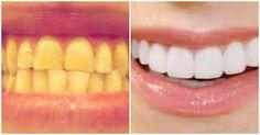 Jednoduchý návod, jak si doma vybělit zuby za 2 minuty