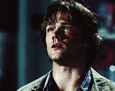 Sam Winchester #Supernatural #HurtSam