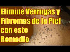 Cómo Eliminar Rápidamente Pequeñas Verrugas De La Piel - YouTube