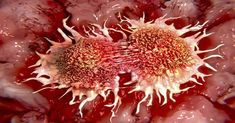 Immunotherapy Drug Combo Shrinks Tumor Size In Skin Cancer Patients: New Cancer Treatment? Lung Cancer, Cancer Cure, Cancer Cells, Breast Cancer, Different Types Of Cancer, Cancer Fighting Foods, Cancer Foods, Types Of Cancers, Caesar Salad