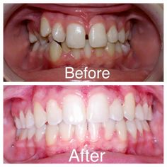 Child Before and After. Nice straight teeth done with braces at Amanda Gallagher Orthodontics!
