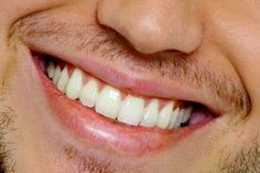 Cuidado com os alimentos que mancham os dentes. Café e vinho são conhecidos inimigos dos dentes brancos. Mas outros alimentos aparentemente inocentes, como açaí, beterraba e refrigerante, também contribuem para escurecer seu sorriso.