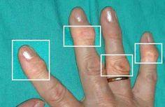 Sofre de artrite e gostaria de conciliar os tratamentos médicos com a ajuda de produtos naturais? Confira algumas dicas.