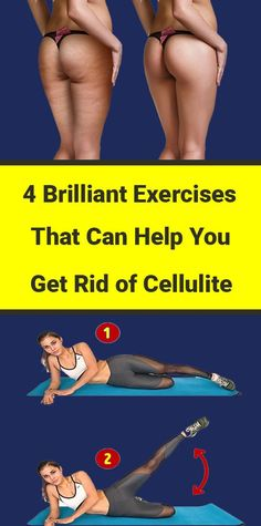 4 Brilliant Exercises That Can Help You Get Rid of Cellulite - Healthy House Wellness Fitness, Fitness Nutrition, Health And Wellness, Health Facts, Health Diet, Glowing Skin Diet, Health Care Reform, Natural Health Remedies, Easy Workouts