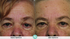 More #RealResults from Optimera!