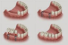 Dental implants are the best and most permanent treatment for missing teeth!!   #dental #implants #cosmeticdentistry #dentistry #missingteeth