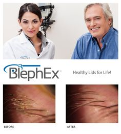 We now offer BlephEx™, which is a treatment for blepharitis. Treating blepharitis helps alleviate symptoms such as:  Itching or scratchy eyes Foreign body sensation Tearing Crusting Redness/Inflammation Mattering Dry eyes Eye rubbing  There are several conditions which may affect the severity of #blepharitis such as dry eye disease, allergies, seborrheic dermatitis, rosacea, age, contact lens wear, poor immune status, rheumatoid arthritis, Sjögren's disease, and androgen deficiency.