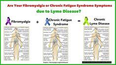 Son síntomas de la fibromialgia Debido a la enfermedad de Lyme ?