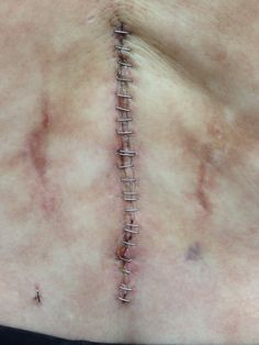 "Incision from surgery 3 was about 4"" & had about 34 staples. The lone staple at bottom left is from where they drained bone marrow from my hip to mix with ground bone removed from my spine. Scars on right & left are from botched surgery 2"