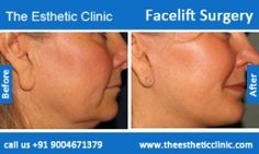 For the mini facelift surgery contact Dr debraj Shome -  Read more: http://www.debrajshome.com/mid-face-mini-lifting-treatment-blepharoplasty-incision-anti-aging/