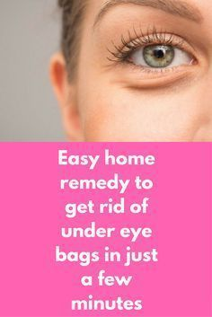 69 Best How to get rid of bags under eyes images in 2019
