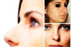 Reducción de Alas Nasales y Rinoplastía  http://retoqueestetico.com/reduccion-de-alas-nasales/ #reducción #de #alas #nasales #rinoplastia #tratamiento #tratar #mejorar #eliminar #perfecta #salud #y #belleza #cuidado #cuidar #la #piel #mujer #en #forma #entre #mujeres #femenino #femenina #el #mejor #con #fitness #hematomas #saludable #sano #tips #consejos #trucos