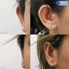 Ear Pinning cosmetic surgery performed by our UK surgeons. The best package in terms of cost & aftercare, book a consultation at our London clinic today by calling 02074866778 Facial Cosmetic Surgery, Up Hairstyles, Her Hair, Childhood, Ear, Cosmetics, Book, Photos, Hairdos