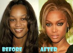 Tyra Banks Plastic Surgery Before and After Nose Job