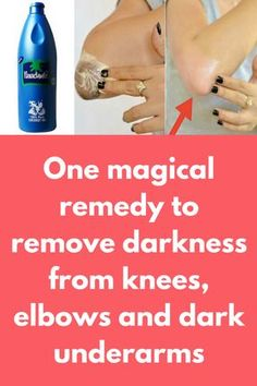 One magical remedy to remove d treatment you will need Toothpaste , make sure it is not gel based, use plain white toothpaste Coconut oil Lemon Salt What to do: In a clean bowl take 1 tea spoon of toothpaste Add … Coconut Oil Hair Mask, Coconut Oil For Acne, Coconut Oil Uses, Coconut Oil Benefits, Coconut Oil Lotion, Dark Elbows, Tan Removal, Lighten Skin, Lighten Armpits
