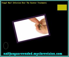 Fungal nail infection over the counter treatments - Nail Fungus Remedy. You have nothing to lose! Visit Site Now
