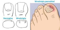 Most recent No Cost Nail care treatment Strategies , Tırnak Batması Neden Olur? Ingrown Toenail Treatment, Ingrown Toe Nail, Foot Remedies, How To Cut Nails, Foot Soak, Feet Nails, Tips & Tricks, Healthy Nails, Body Treatments