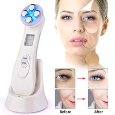 Facial Skin Rejuvenation RF EMS Mesotherapy Face Lifting 5 in 1 Beauty Radio Frequency LED Photon Blackhead Acne Wrinkle Remover Loción Facial, Facial Care, Facial Massage, Facial Muscles, Anti Aging, Face Tightening, Pigmentation, Anti Ride, Led Light Therapy