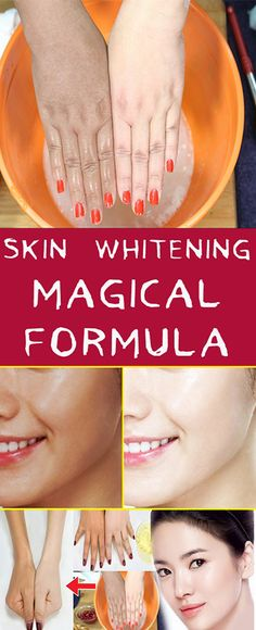 skin whitening magical formula #fitness #beauty #hair #workout #health #diy #skin #Pore #skincare #skintags #skintagremover #facemask #DIY #workout #womenproblems #haircare #teethcare #homerecipe