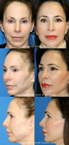 Consider a fat transfer procedure in San Diego - La Jolla California with Dr Karam. Information on fat transfer procedures, full face fat transfer, and micro fat transfers to help restore volume to the face. Too Faced Highlighter, Fat Transfer, Neck Lift, Brow Lift, Facial Rejuvenation, Before After Photo, Face Contouring, Jawline, Surgery