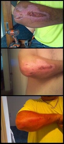 Www.seacretdirect.com/rherrick..roadrash from a motorcycle accident in Daytona, Florida using salt and oil scrub. Results in one week.