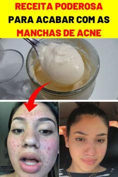 Girl Life Hacks, Girls Life, Facial Tips, Beauty Skin, Beauty Makeup, Skin Spots, Face Skin Care, Acne Scars, Spa Day