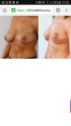 #breast #lifting without #vertical # scar # scarless #breast