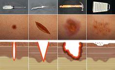 Tipos de Heridas. Herida punzante, incisa o cortante, contusa y desgarrante