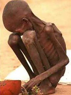 http://haben-sie-das-gewusst.blogspot.com/2012/08/social-media-werbestrategie-fur-kleine.html In Africa, 40 percent of children under five years suffer from learning disabilities. Photo: EPA