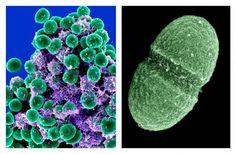 Staphylococcus epidermidis and Enterococcus faecalis; via electron scanning microscope.