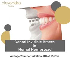 We not only provide unique treatment which is minimally invasive yet, extremely successful but, also we enhance your natural smile. Alexandra Dental offers Invisible Braces in Hemel Hempstead. Invisible Braces, Hemel Hempstead, Dental, How To Remove, Success, Smile, Natural, Unique