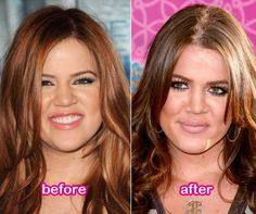 Khloe Kardashian Plastic Surgery Nose Job Before And After Rumors