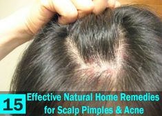 15 Effective Natural Home Remedies for Scalp Pimples & Acne Ingrown Hair On Scalp, Pimples On Scalp, Sores On Scalp, Oily Scalp, Pimples Remedies, Psoriasis Remedies, Home Remedies For Hair, Hair Remedies, Natural Remedies