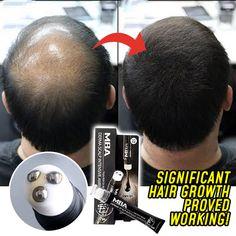 Hair Removal Spray, Anti Hair Loss, Hair Regrowth, Perfume, Alter, The Balm, Health And Beauty, Beauty Skin, Thinning Hair