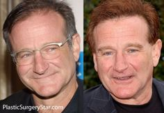 Robin Williams Hair Transplant #steve #carell #hair #plugs http://malawi.nef2.com/robin-williams-hair-transplant-steve-carell-hair-plugs/  # Robin Williams Hair Transplant A few years ago, Robin Williams had a very subtle and discreet hair transplant. He kept his current hairline at the time the same and just filled in the thinning area. His hair looks a little funky after the hair transplant because it s dyed a weird color; some kind of copper brown. But, if it were his normal hair color…