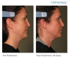 The Ulthera System delivers low levels of heat to the targeted areas as sound waves are directed into the skin. As the skin's connective tissue becomes heated, collagen production is stimulated and sagging tissue lifts and tightens.
