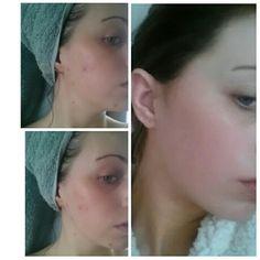 women using viagra