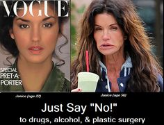 Isn't the purpose of plastic surgery to NOT get caught looking like this?!  Eww