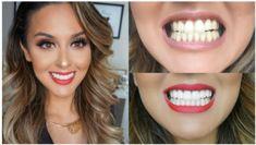 Whitening veneers local teeth whitening,decay inside tooth connection between oral health and overall health,restorative dentistry tooth crown. Smile Teeth, Teeth Care, Perfect Teeth, Perfect Smile, Nu Skin, Composite Veneers, Zoom Teeth Whitening, Dental Veneers, Self Esteem