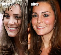 Kate Middleton certainly had some plastic surgery before becoming a princess. She had a nose job to reduce a bulbous tip giving a more petite and feminine look. Kate Beckinsale Plastic Surgery, Meghan Markle Nose Job, Kate Middleton, Middleton Family, Bulbous Nose, Celebs Without Makeup, Plastic Surgery Procedures, Celebrity Plastic Surgery, Under The Knife