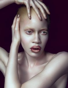 FAB Beauty: African-American Albino Model Diandra Forrest For Schön! Magazine Spring/Summer 2014 Issue