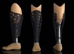 Prosthetic cover by Miaa