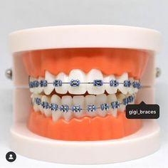 Braces Bands, Braces Tips, Dental Braces, Teeth Braces, Braces Transformation, Pink Braces, Cute Nose Piercings, Best Braid Styles, Cute Braces Colors