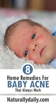 8 Safe Home Remedies for Baby Acne Baby acne is known as Erythema toxicum neonatorum. It is not a rare skin condition; it affects more than 30 percent of newborns.Even though baby acne refers to Erythema toxicum neonatorum, the conditi Face Rash Remedies, Baby Acne Remedy, Home Remedies For Rashes, Natural Remedies For Rosacea, Cystic Acne Remedies, Newborn Rash, Baby Rash On Face, Overnight Acne Remedies, Essential Oils For Babies