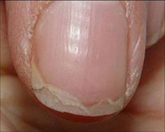 This is what peeling nails look like. ~ loodie loodie loodie: Nail Hardeners: Are formaldehyde based hardeners right for you? Doctors at the International Council for Truth in Medicine are revealing the truth about diabetes that has been suppressed for ov Health Remedies, Home Remedies, Natural Remedies, Ongles Forts, Pale Nails, Peeling Nails, Split Nails, Nail Problems, Nail Hardener