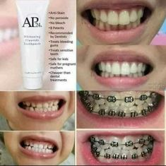 Now you can smile confidently thanks to this great tasting Whitening Fluoride Toothpaste that whitens and brightens teeth while fighting dental plaque formation. Whitening Fluoride Toothpaste, Teeth Whitening, Ap 24, Pregnant Mother, Nu Skin, Instagram Posts, Pasta, Smile, Beauty