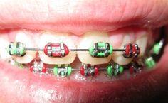 website shows color of braces for each holiday! Kids Braces, Orthodontic Appliances, Braces Colors, Orthodontics, Fashion Colours, Different Colors, Dental, Website, Holiday