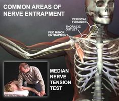 Sometimes wrist and hand pain come from thoracic outlet syndrome. We can test for it with a nerve tension test (shown in this graphic). If you want to learn how to evaluate the nerves, this DVD Nerve Mobilization teaches that. http://www.realbodywork.com/nerve/nerve.htm
